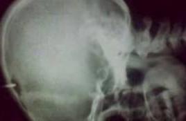 Un barbat din raionul Cantemir si-a batut un cui in cap