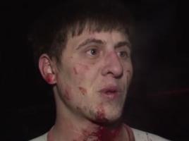 Caz socant in capitala- un barbat i-a taiat gitul prietenului la betie